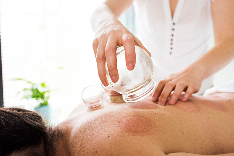 woman getting a cupping treatment for relaxation