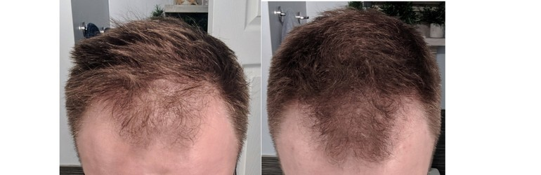 Left - Hair before treatment. Right - Hair after one year of treatment.